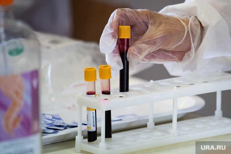 Креков иски лаборатории тесты подробности